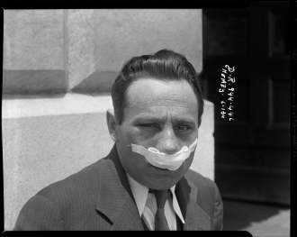 An assault victim poses for the camera – 1934